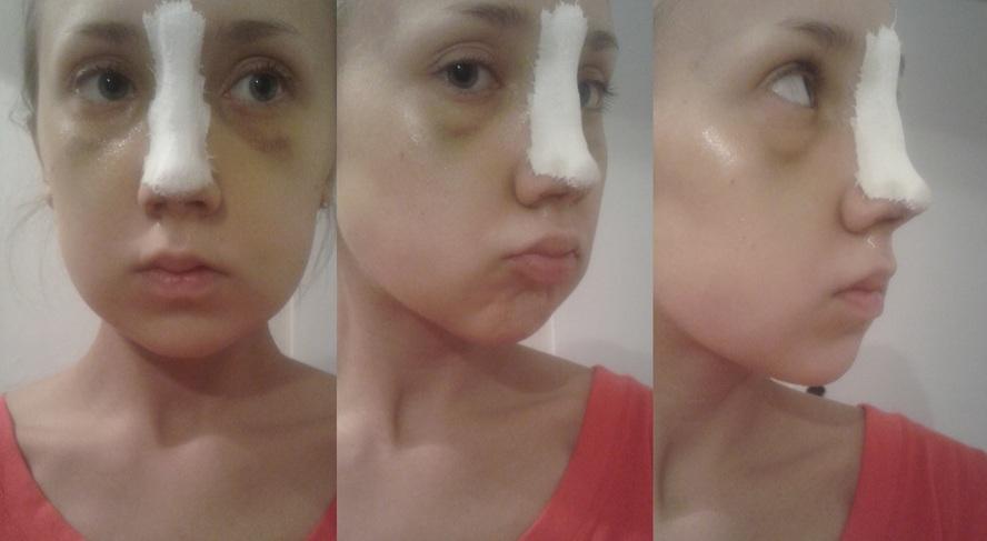 как снять отек опосля операции на лице