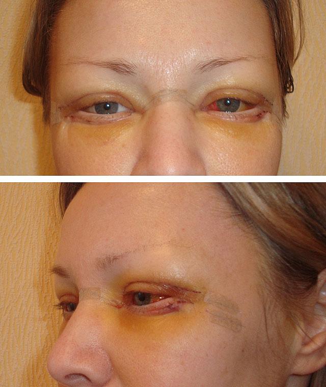 блефаропластика по дням после операции фото