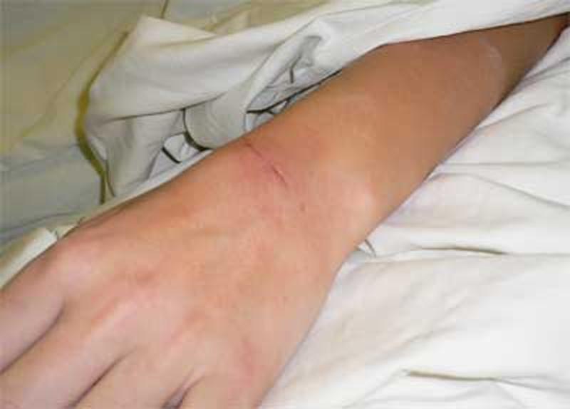 Как в домашних.условиях лечить гигрому на руке