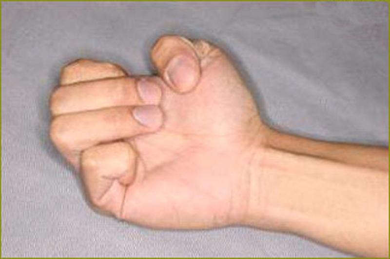 После травмы руки не сгибаются пальцы