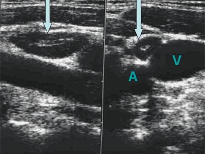 Увеличение лимфоузлов под мышками у женщин лечение