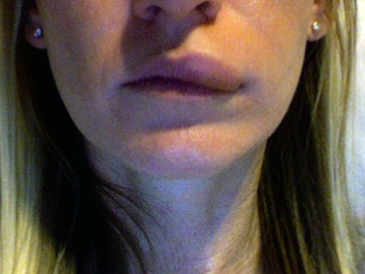 Что делать с опухшими губами