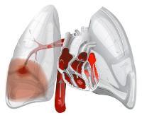 Біль в легенях при глибокому вдиху