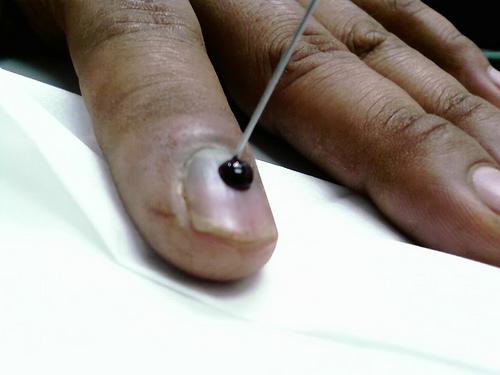 Как лечить пигментные возрастные пятна на лице