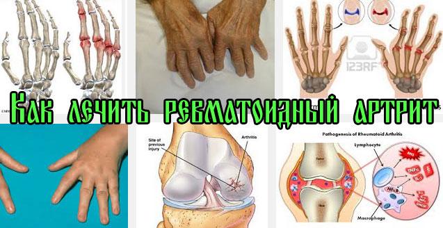 Ревматоидный артрит чем лечить в домашних условиях 312