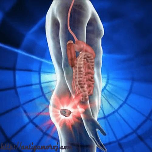 Боль в анальном отверстии подобрана