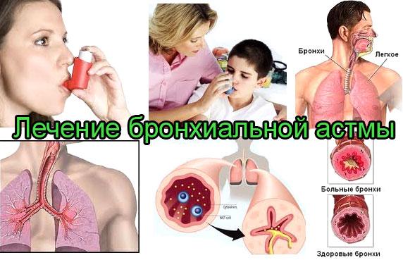 лечение бронхиальной астмы в белокурихе на