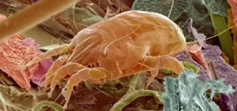Этиология пищевой аллергии
