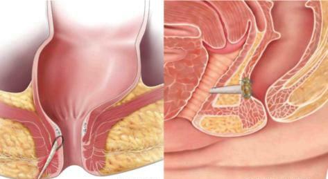 Питание при парапроктите после операции