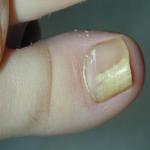 Как выглядит грибок ногтей на руках как лечить
