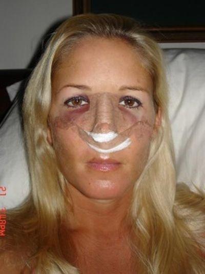 Отек после пластической операции
