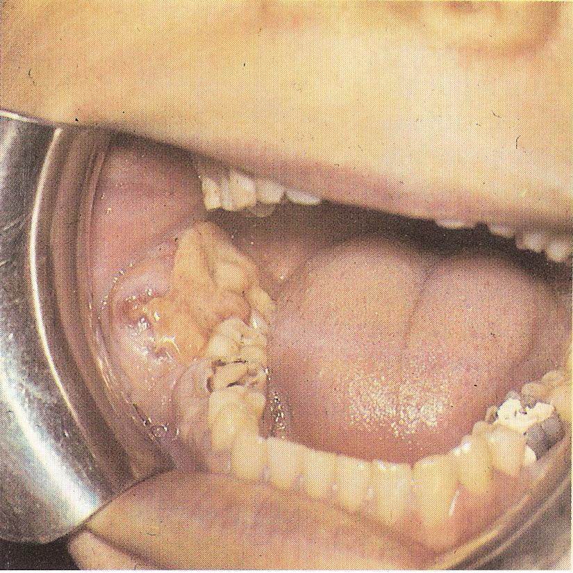 Практически из любых клеток эпителиальных, гайморовых пазух, зубных, костных может начаться данный процесс.