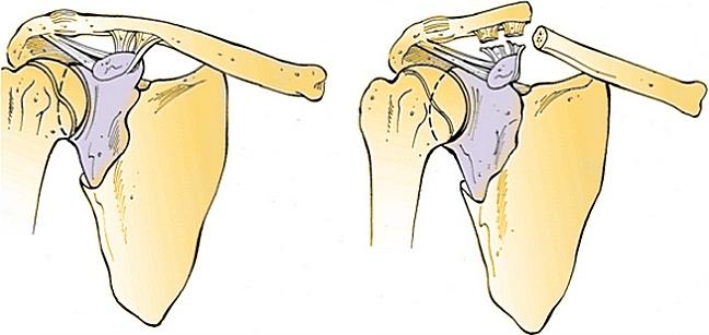 травмы плечевого сустава при неправильном ударение