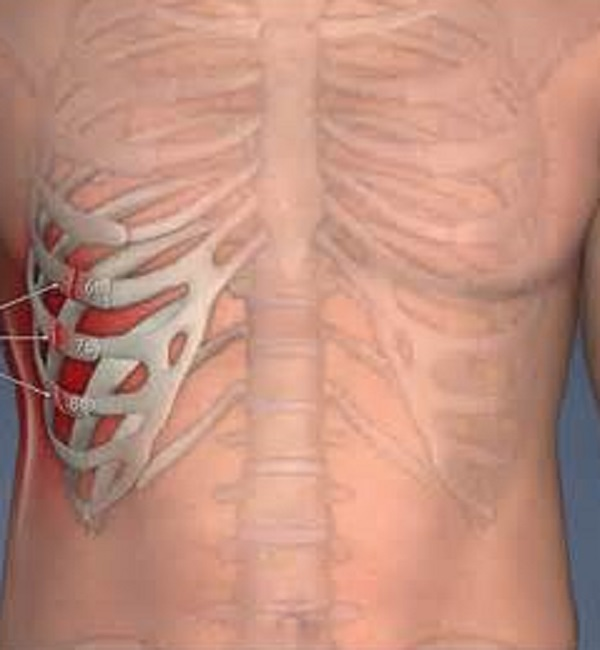 Как лечить трещину в ребре в домашних
