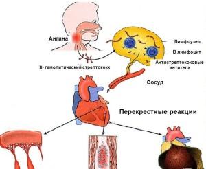 Чем лечить ангину у взрослого в домашних