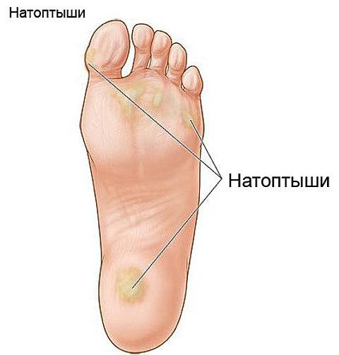 Мозоли на ногах. Лечение мозолей на пальцах ног - смотреть видео (видео)