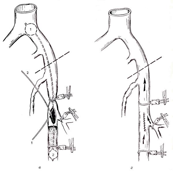 tromboz-analnoy-veni