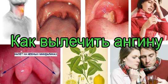 При воспалении лимфоузлов что делать как лечить