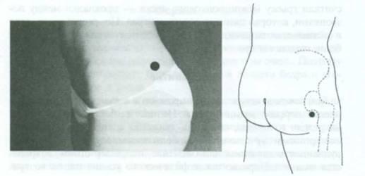 Точки для массажа седалищного нерва