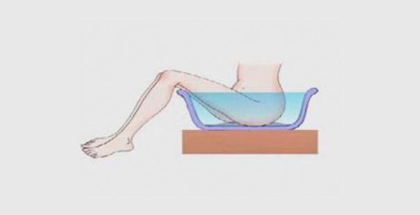 Алгоритм піхвові ванночки