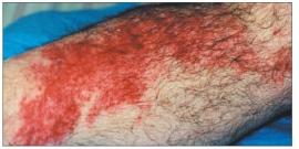 Использование рун для лечения болезней - СБОРНИК