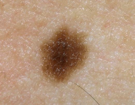 Грибок на теле в виде коричневых пятен