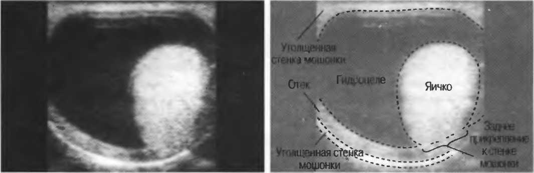 Гидроцеле после операции варикоцеле