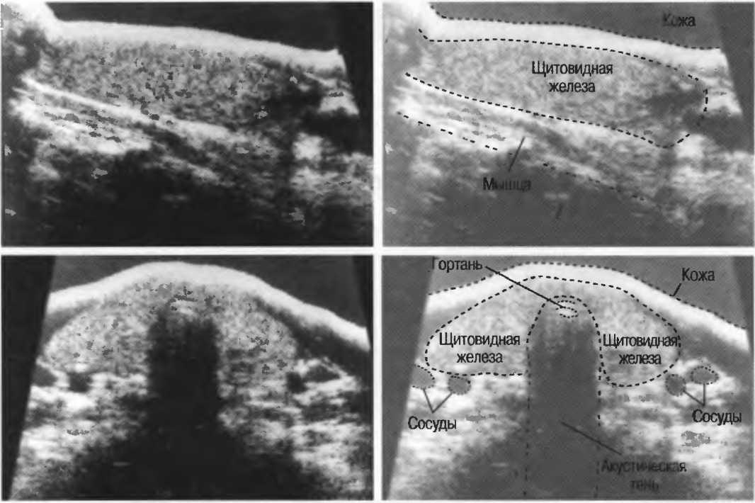 важно период щитовидная железа в разрезе ток дистиллированная вода